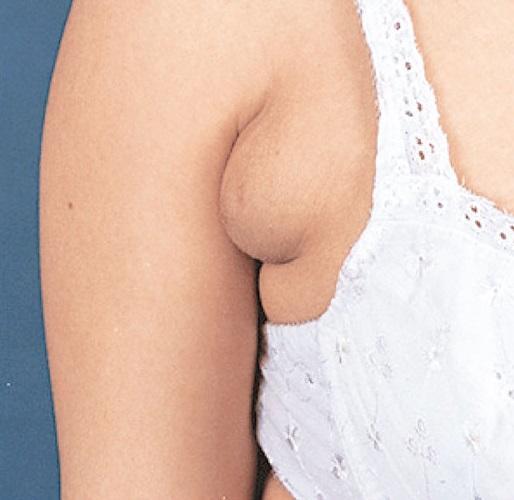 پستان فرعی(پستان سوم)