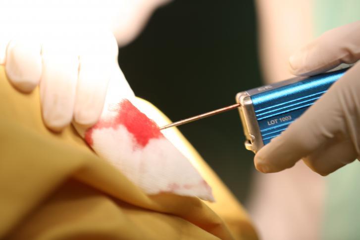 بیوپسی پستان؛ تنها راه قطعی تشخیص ماهیت توده های پستانی