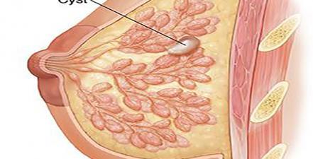 کیست پستان چیست و آیا ارتباطی با سرطان دارد؟